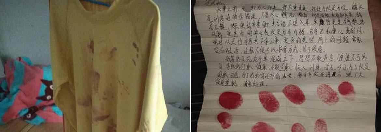 15岁中国运动员遭教练殴打 血衣曝光